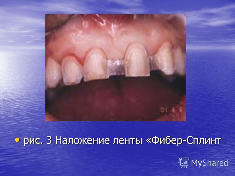 рис. 3 Наложение ленты «Фибер-Сплинт рис. 3 Наложение ленты «Фибер-Сплинт