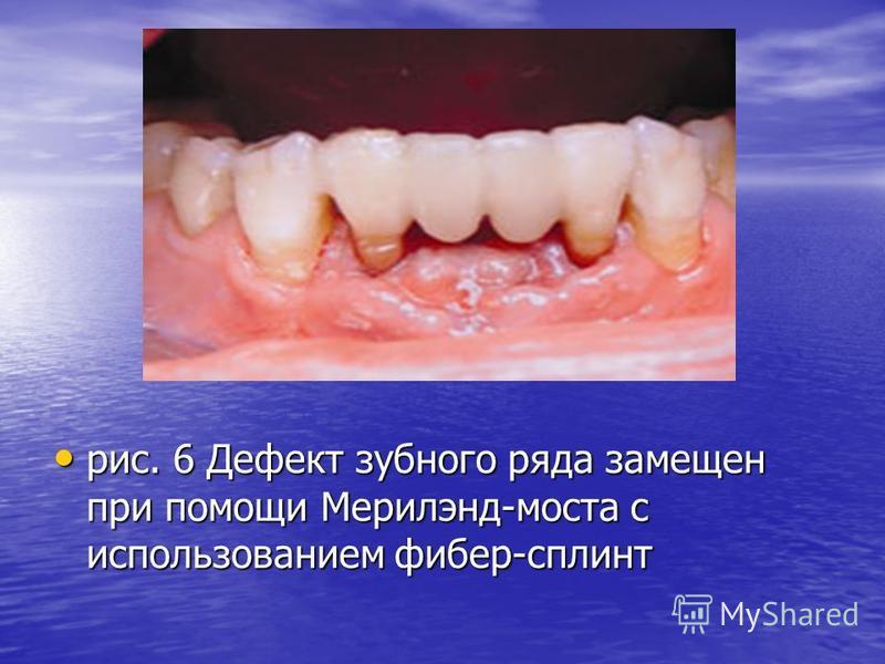 рис. 6 Дефект зубного ряда замещен при помощи Мерилэнд-моста с использованием фибер-сплинт рис. 6 Дефект зубного ряда замещен при помощи Мерилэнд-моста с использованием фибер-сплинт