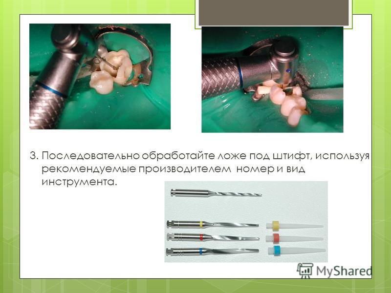 3. Последовательно обработайте ложе под штифт, используя рекомендуемые производителем номер и вид инструмента.