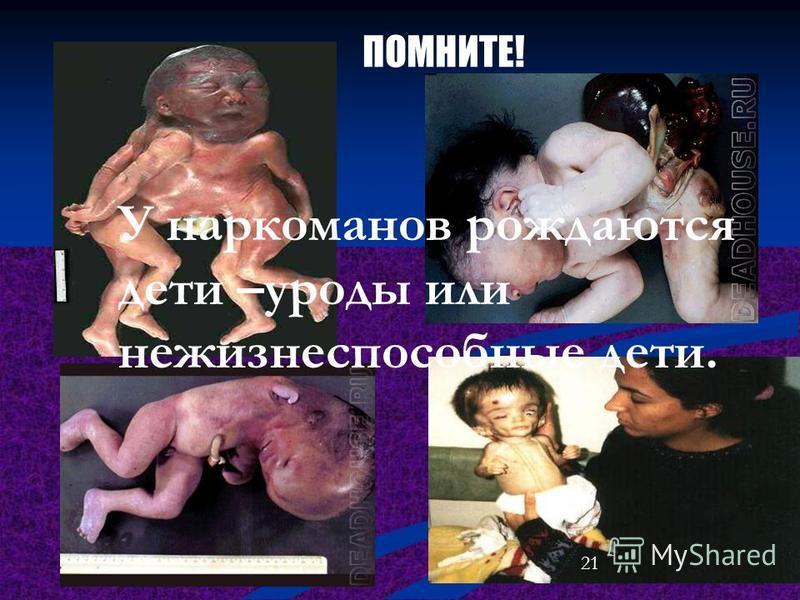 ПОМНИТЕ! У наркоманов рождаются дети –уроды или нежизнеспособные дети. 21