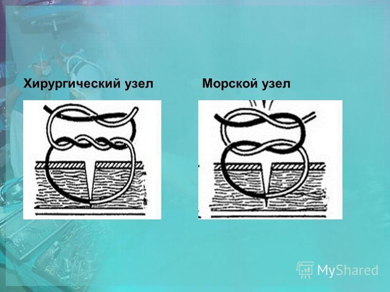 Хирургический узел Морской узел