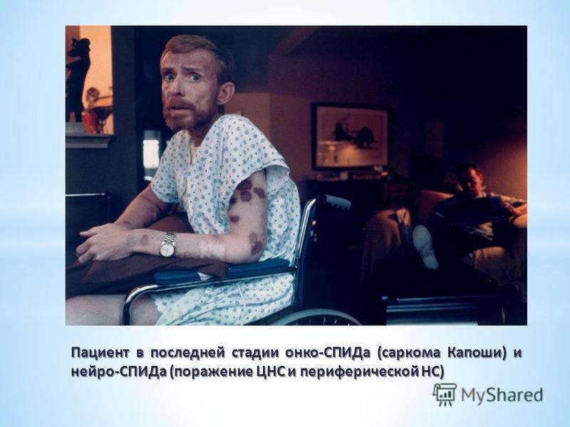 Пациент в последней стадии онко-СПИДа (саркома Капоши) и нейро-СПИДа (поражение ЦНС и периферической НС)