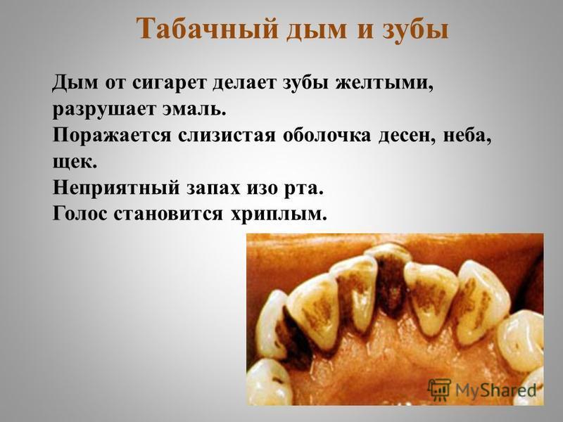 Табачный дым и зубы Дым от сигарет делает зубы желтыми, разрушает эмаль. Поражается слизистая оболочка десен, неба, щек. Неприятный запах изо рта. Голос становится хриплым.