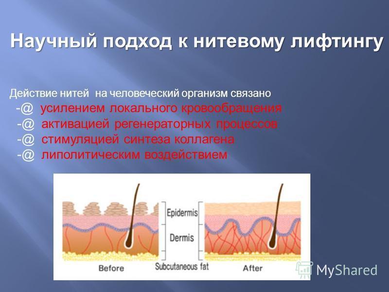 Научный подход к нитевому лифтингу Действие нитей на человеческий организм связано -@ усилением локального кровообращения -@ активацией регенераторных процессов -@ стимуляцией синтеза коллагена -@ липолитическим воздействием