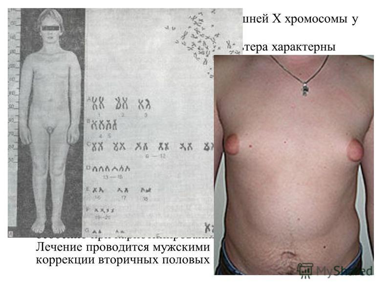Болезнь Кляйнфельтера- наличие лишней X хромосомы у мужчин (генотип – XXY). Для мужчин с синдромом Клайнфельтера характерны высокий рост, длинные конечности и относительно короткое туловище, евнухоидизм, бесплодие, гинекомастия, повышенное выделение
