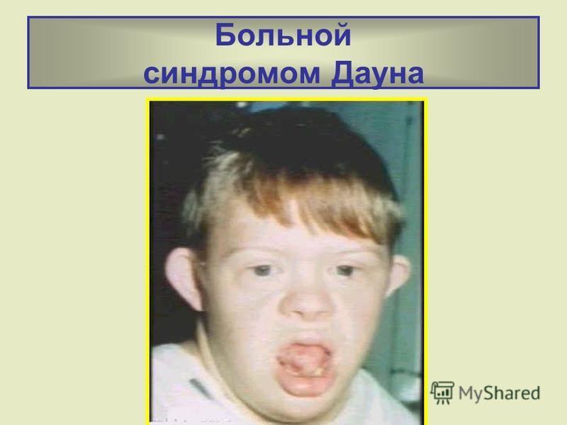 Больной синдромом Дауна