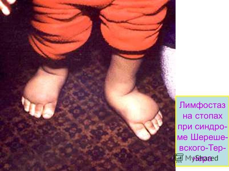 Лимфостаз на стопах при синдроме Шереше- вского-Тер- нера