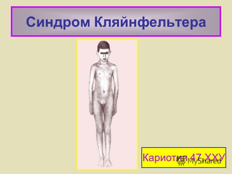 Синдром Кляйнфельтера Кариотип 47,ХХУ