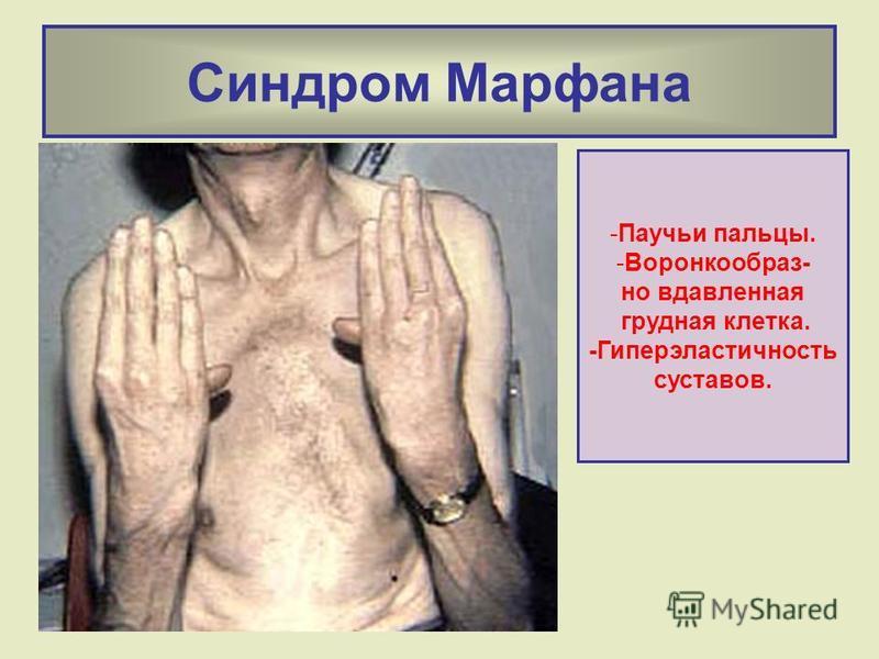 Синдром Марфана -Паучьи пальцы. -Воронкообраз- но вдавленная грудная клетка. -Гиперэластичность суставов.