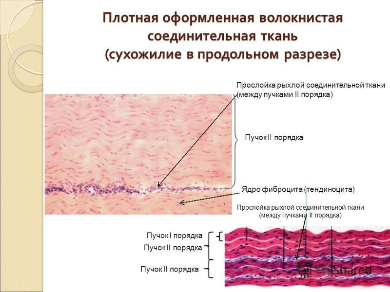 Плотная оформленная волокнистая соединительная ткань ( сухожилие в продольном разрезе ) Пучок II порядка Ядро фиброцита (тендиноцита) Прослойка рыхлой соединительной ткани (между пучками II порядка) Пучок I порядка Пучок II порядка Прослойка рыхлой с