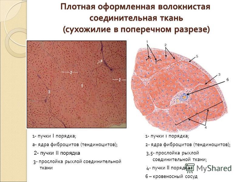 Плотная оформленная волокнистая соединительная ткань ( сухожилие в поперечном разрезе ) 1- пучки I порядка ; 2- ядра фиброцитов ( тендиноцитов ); 3,5- прослойка рыхлой соединительной ткани ; 4- пучки II порядка 6 – кровеносный сосуд 6 1- пучки I поря