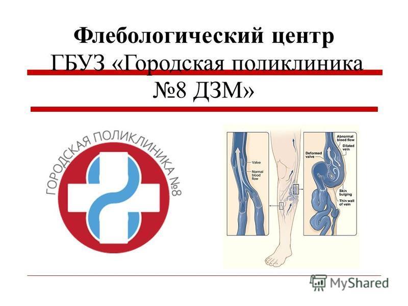 Флебологический центр ГБУЗ «Городская поликлиника 8 ДЗМ»