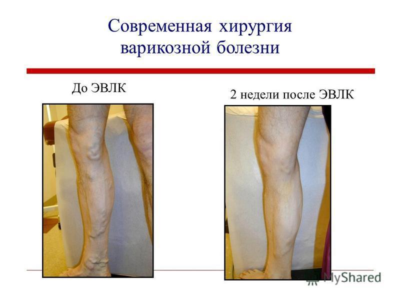 До ЭВЛК 2 недели после ЭВЛК Современная хирургия варикозной болезни