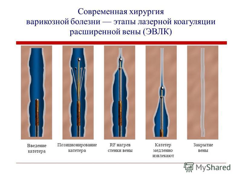 Введение катетера Позиционирование катетера RF нагрев стенки вены Катетер медленно извлекают Закрытие вены Современная хирургия варикозной болезни этапы лазерной коагуляции расширенной вены (ЭВЛК)