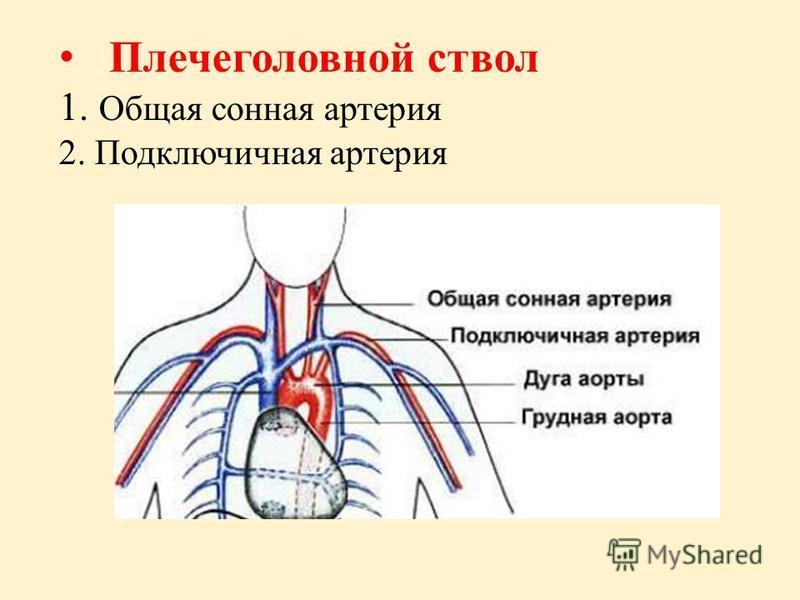 Плечеголовной ствол 1. Общая сонная артерия 2. Подключичная артерия