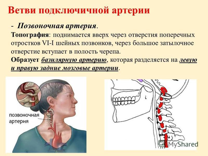 Ветви подключичной артерии -Позвоночная артерия. Топография: поднимается вверх через отверстия поперечных отростков VI-I шейных позвонков, через большое затылочное отверстие вступает в полость черепа. Образует базилярную артерию, которая разделяется