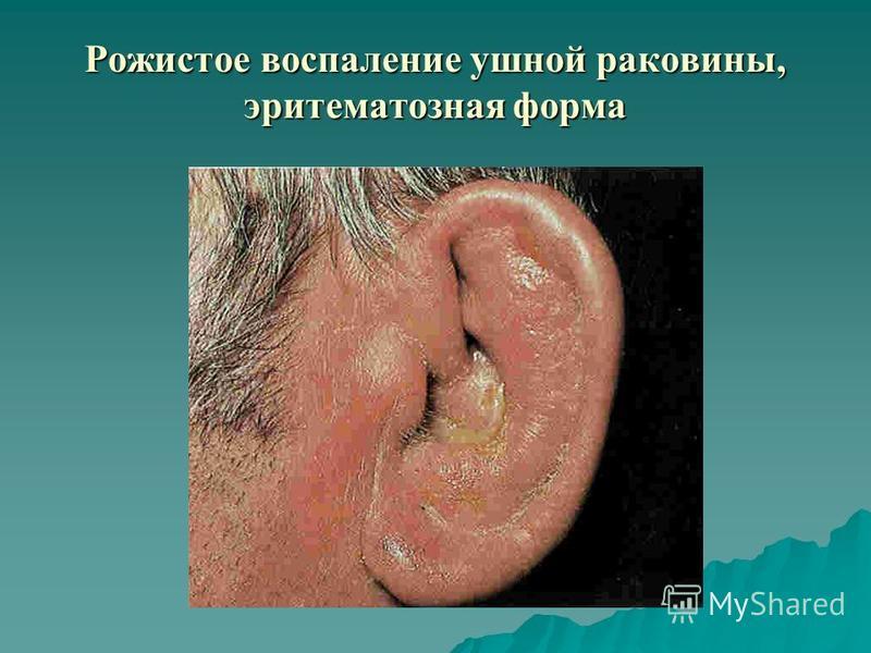 Рожистое воспаление ушной раковины, эритематозная форма