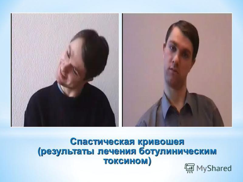 Спастическая кривошея (результаты лечения ботулиническим токсоном)