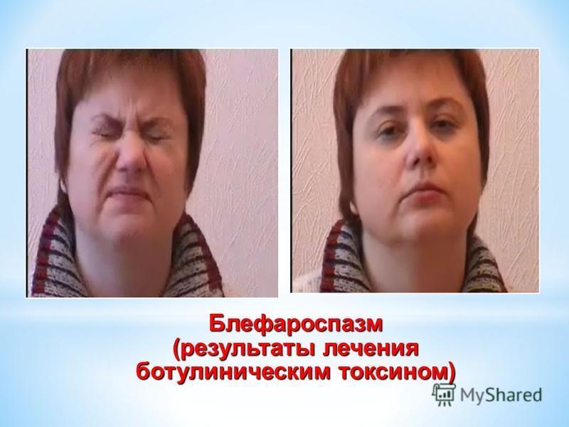 Блефароспазм (результаты лечения ботулиническим токсоном)