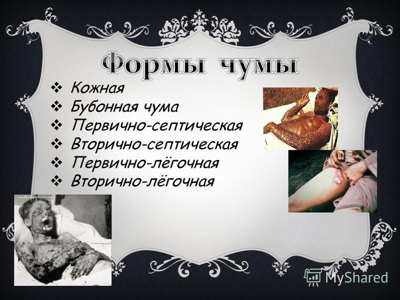 Кожная Бубонная чума Первично-септическая Вторично-септическая Первично-лёгочная Вторично-лёгочная