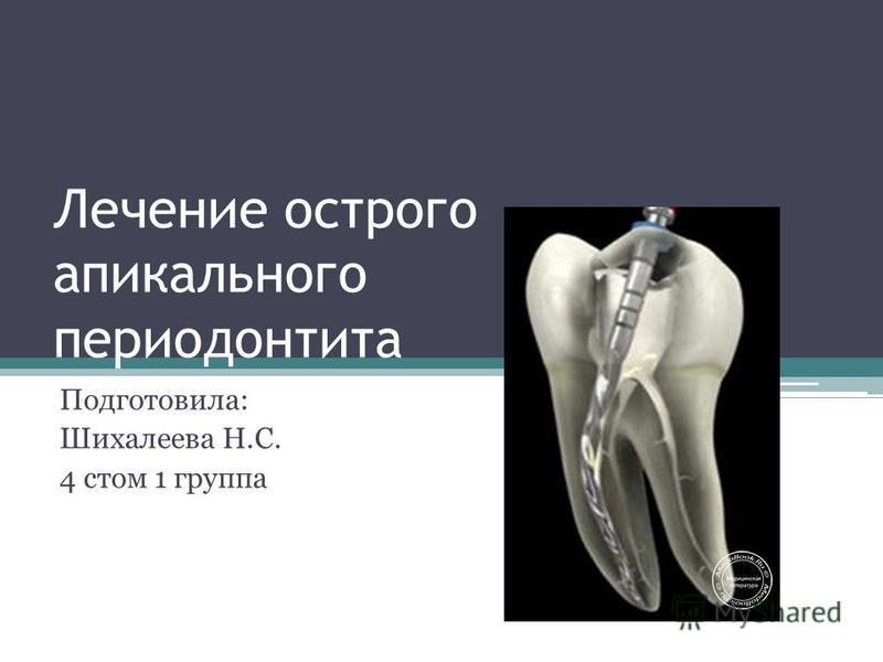 Лечение острого апикального периодонтита Подготовила: Шихалеева Н.С. 4 стом 1 группа
