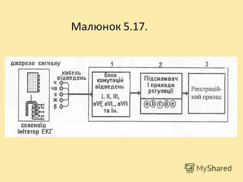 Спрощена схема електрокардіографа Він містить вхідний блок (1-перемикач відведень), підсилюючий блок-2 і реєструючий пристрій -3, а також різноманітні ручки та кнопки керування, котрі забезпечують надходження і контроль сигналу при записі електрокард