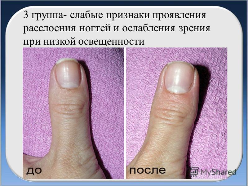 3 группа- слабые признаки проявления расслоения ногтей и ослабления зрения при низкой освещенности