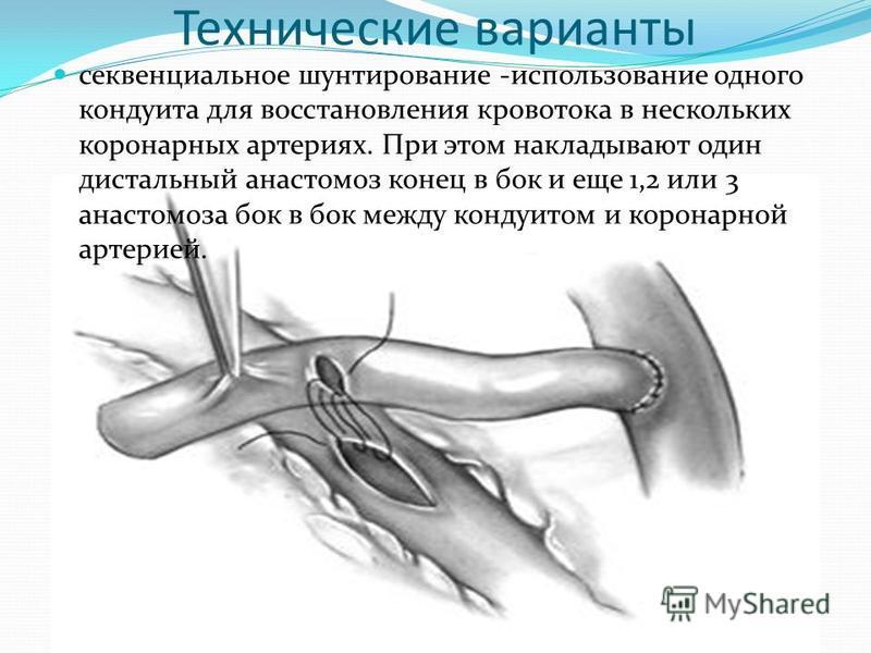 Технические варианты секвенциальное шунтирование -использование одного кондуита для восстановления кровотока в нескольких коронарных артериях. При этом накладывают один дистальный анастомоз конец в бок и еще 1,2 или 3 анастомоза бок в бок между конду