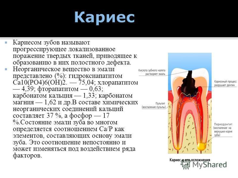 Кариесом зубов называют прогрессирующее локализованное поражение твердых тканей, приводящее к образованию в них полостного дефекта. Неорганическое вещество в эмали представлено (%): гидроксиапатитом Са 10(РО4)6(ОН)2. 75,04; хлорапатитом 4,39; фторапа