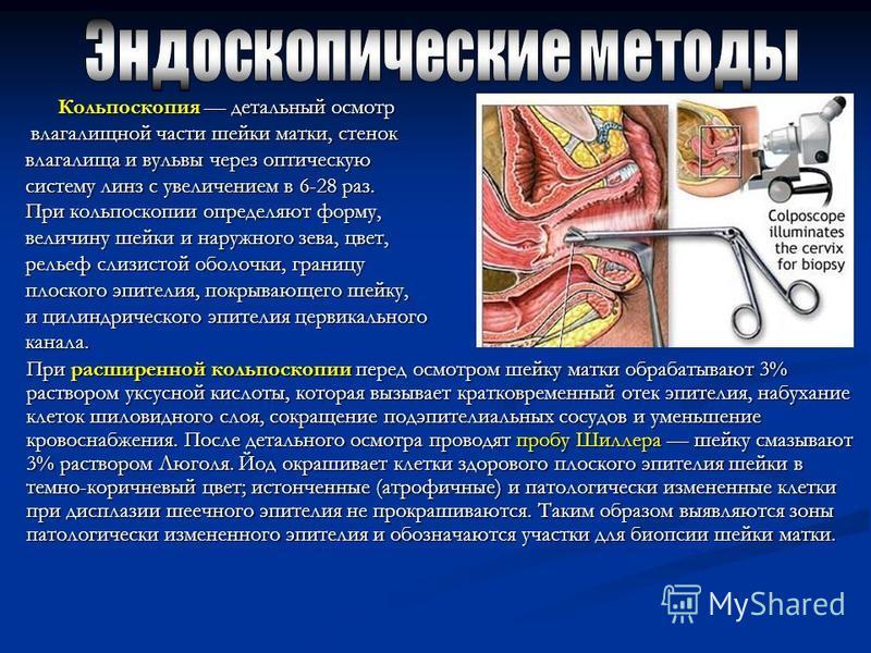Кольпоскопия детальный осмотр Кольпоскопия детальный осмотр влагалищной части шейки матки, стенок влагалищной части шейки матки, стенок влагалища и вульвы через оптическую систему линз с увеличением в 6-28 раз. При кольпоскопии определяют форму, вели