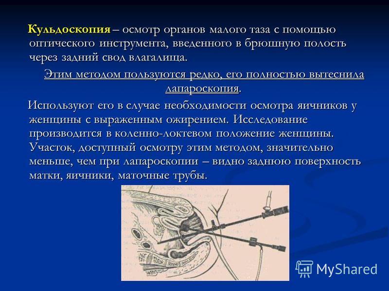 Кульдоскопия – осмотр органов малого таза с помощью оптического инструмента, введенного в брюшную полость через задний свод влагалища. Кульдоскопия – осмотр органов малого таза с помощью оптического инструмента, введенного в брюшную полость через зад