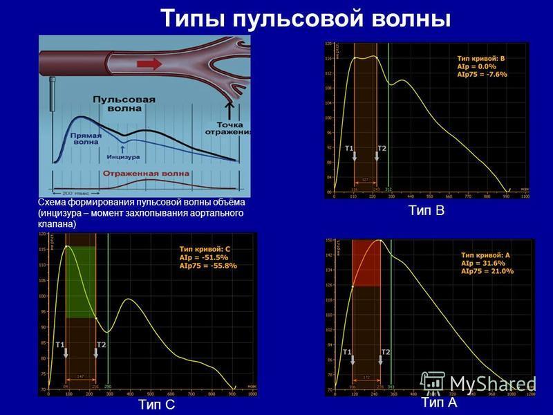 Тип С Тип В Тип А Типы пульсовой волны Схема формирования пульсовой волны объёма (инцизура – момент захлопывания аортального клапана)
