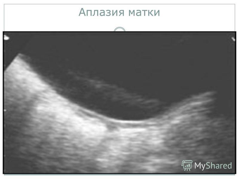 Аплазия влагалища при функционирующей матке Улыбнуло!