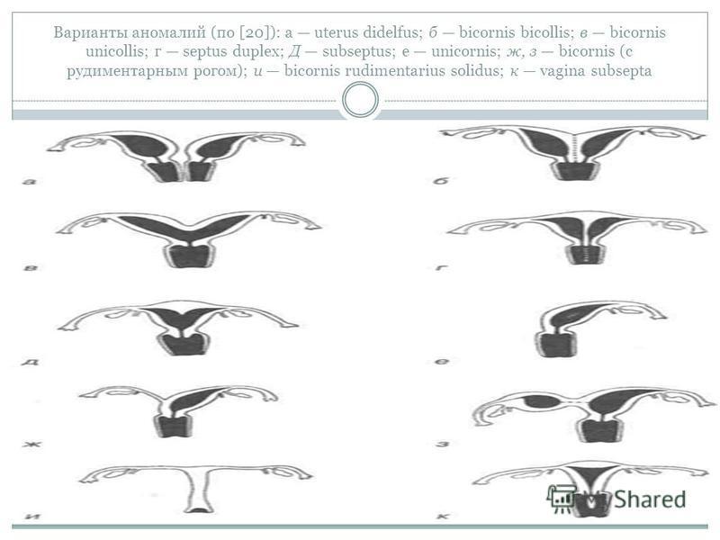 Варианты аномалий (по [20]): а uterus didelfus; б bicornis bicollis; в bicornis unicollis; г septus duplex; Д subseptus; e unicornis; ж, з bicornis (с рудиментарным рогом); и bicornis rudimentarius solidus; к vagina subsepta