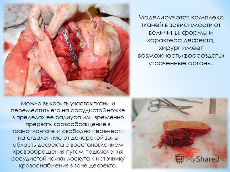 Можно выкроить участок ткани и переместить его на сосудистой ножке в пределах ее радиуса или временно прервать кровообращение в трансплантате и свободно перенести на отдаленную от донорской зоны область дефекта с восстановлением кровообращения путем