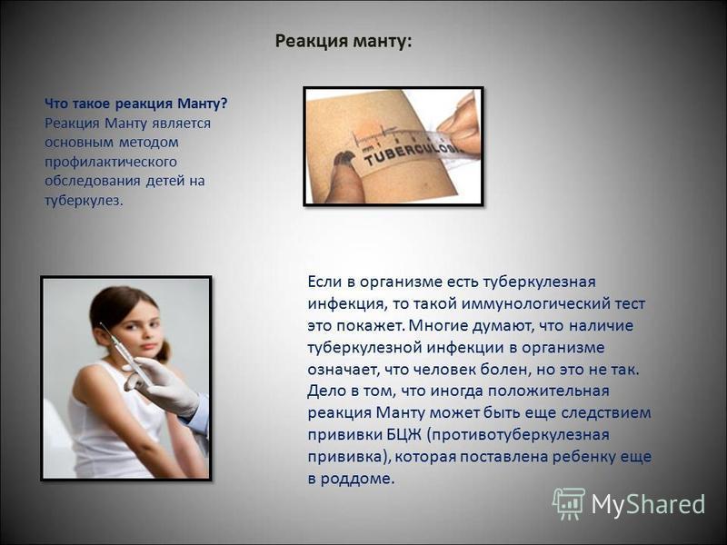 Реакция манту: Что такое реакция Манту? Реакция Манту является основным методом профилактического обследования детей на туберкулез. Если в организме есть туберкулезная инфекция, то такой иммунологический тест это покажет. Многие думают, что наличие т