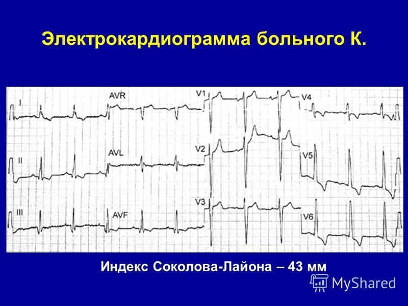 Электрокардиограмма больного К. Индекс Соколова-Лайона – 43 мм