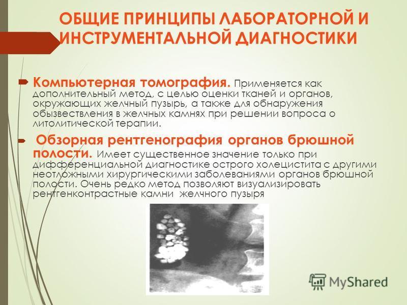 ОБЩИЕ ПРИНЦИПЫ ЛАБОРАТОРНОЙ И ИНСТРУМЕНТАЛЬНОЙ ДИАГНОСТИКИ Компьютерная томография. Применяется как дополнительный метод, с целью оценки тканей и органов, окружающих желчный пузырь, а также для обнаружения обызвествления в желчных камнях при решении
