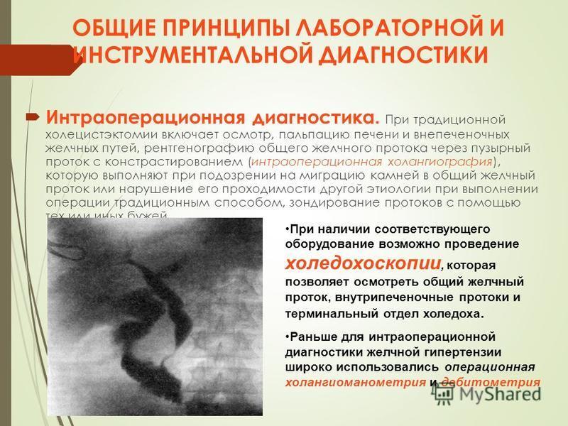 ОБЩИЕ ПРИНЦИПЫ ЛАБОРАТОРНОЙ И ИНСТРУМЕНТАЛЬНОЙ ДИАГНОСТИКИ Интраоперационная диагностика. При традиционной холецистэктомии включает осмотр, пальпацию печени и внепеченочных желчных путей, рентгенографию общего желчного протока через пузырный проток с