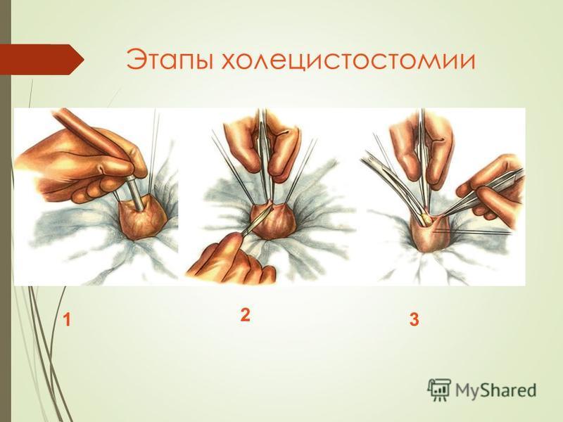 Этапы холецистостомии 1 2 3