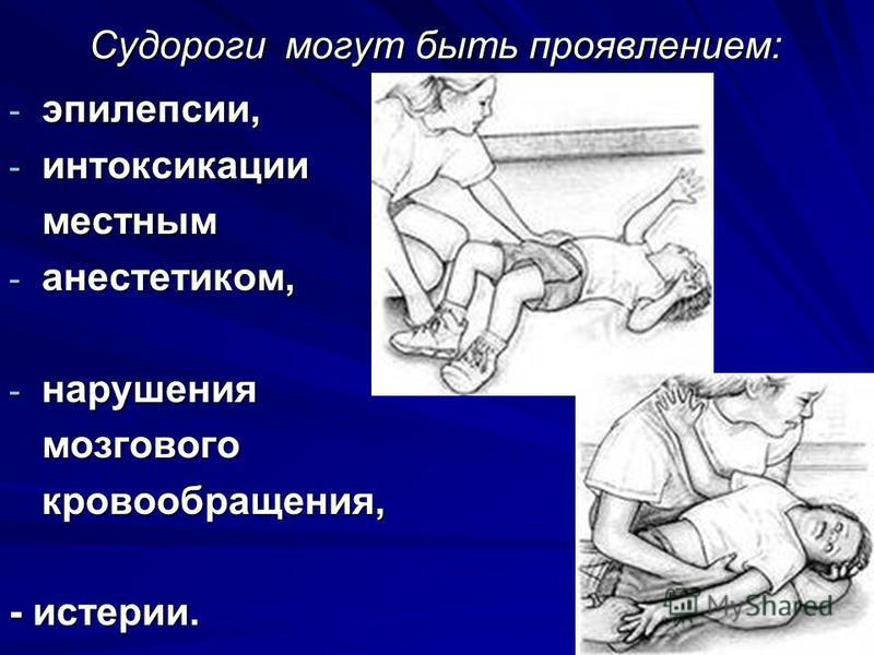 Судороги могут быть проявлением: - эпилепсии, - интоксикации местным - анестетиком, - нарушения мозгового кровообращения, - истерии.