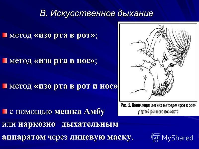 B. Искусственное дыхание метод «изо рта в рот»; метод «изо рта в нос»; метод «изо рта в рот и нос»; с помощью мешка Амбу или наркознодыхательным аппаратом через лицевую маску.
