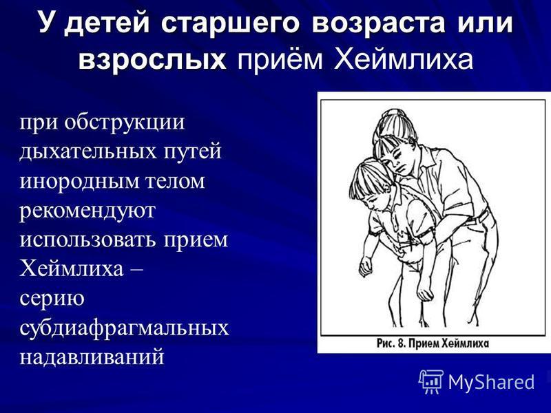 У детей старшего возраста или взрослых У детей старшего возраста или взрослых приём Хеймлиха при обструкции дыхательных путей инородным телом рекомендуют использовать прием Хеймлиха – серию субдиафрагмальных надавливаний