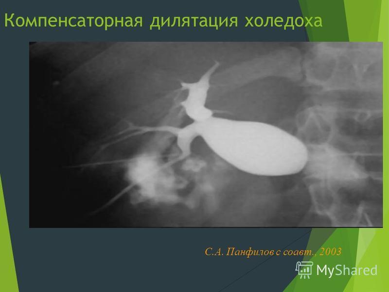 Компенсаторная дилатация холедоха С.А. Панфилов с соавт., 2003