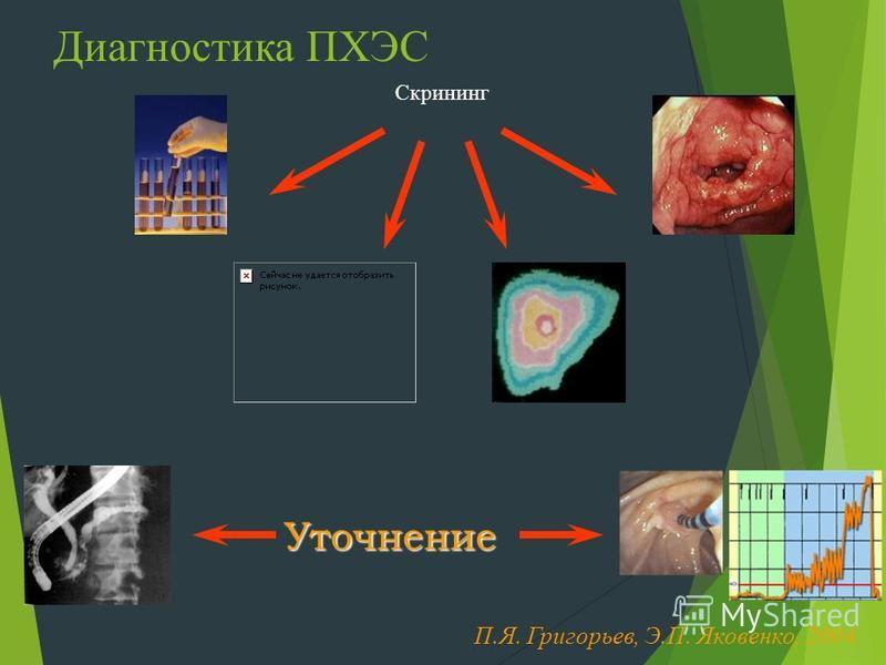 Диагностика ПХЭС Скрининг Уточнение П.Я. Григорьев, Э.П. Яковенко, 2004