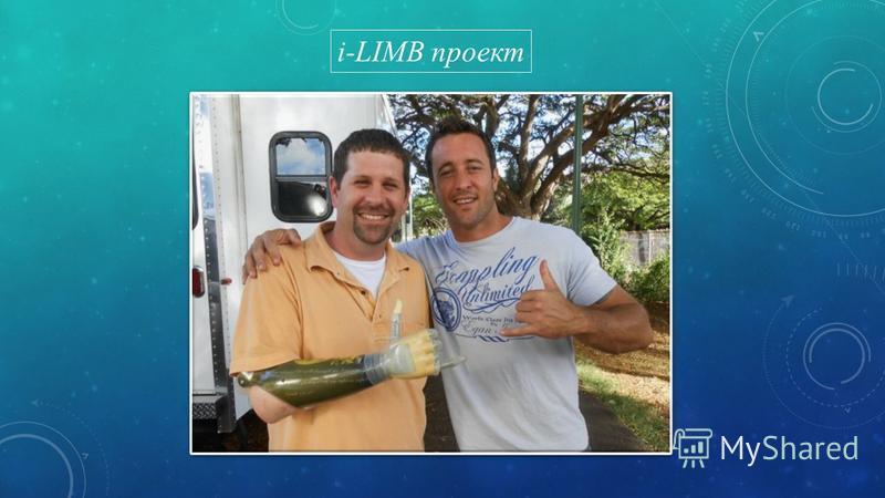 i-LIMB проект