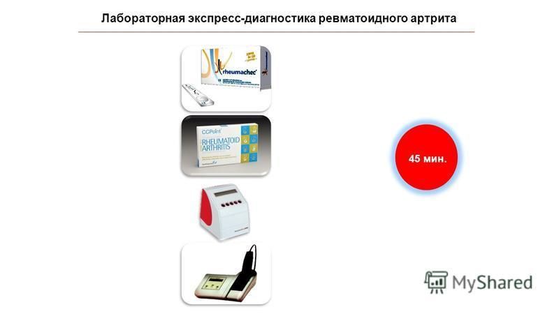 Лабораторная экспресс-диагностика ревматоидного артрита IgM РФ, АМЦВ АЦЦП СОЭ СРБ 45 мин.