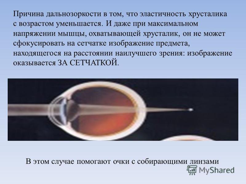 Причина дальнозоркости в том, что эластичность хрусталика с возрастом уменьшается. И даже при максимальном напряжении мышцы, охватывающей хрусталик, он не может сфокусировать на сетчатке изображение предмета, находящегося на расстоянии наилучшего зре