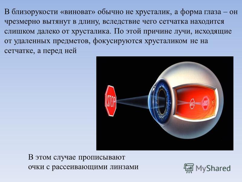 В близорукости «виноват» обычно не хрусталик, а форма глаза – он чрезмерно вытянут в длину, вследствие чего сетчатка находится слишком далеко от хрусталика. По этой причине лучи, исходящие от удаленных предметов, фокусируются хрусталиком не на сетчат