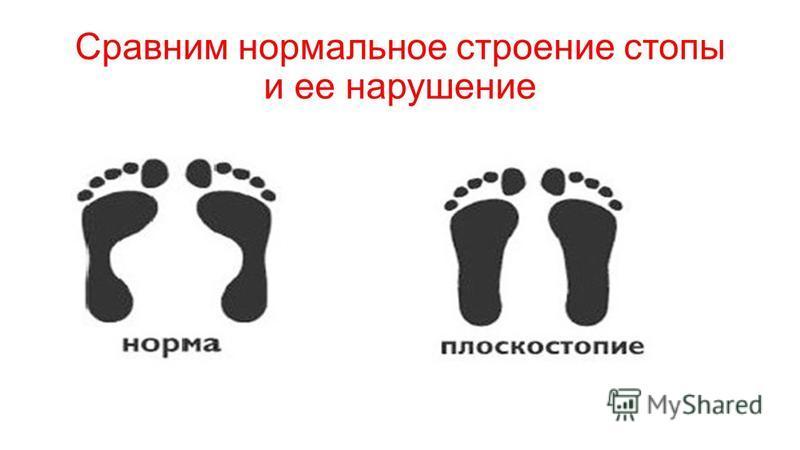 Сравним нормальное строение стопы и ее нарушение